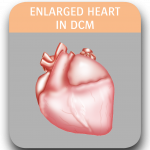 Image of enlarged heart