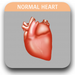 Image of normal heart